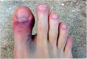 törött lábujj ellátása az ujjízületek hatékony kezelése