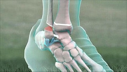 Külső boka törés kezelése.