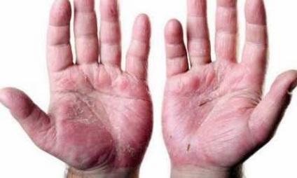 vélemények viaszkrém pikkelysömör vörös foltok a kezeken az ujjak között viszketnek