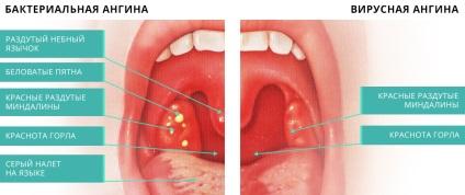Тонзиллит и его лечение в домашних условиях