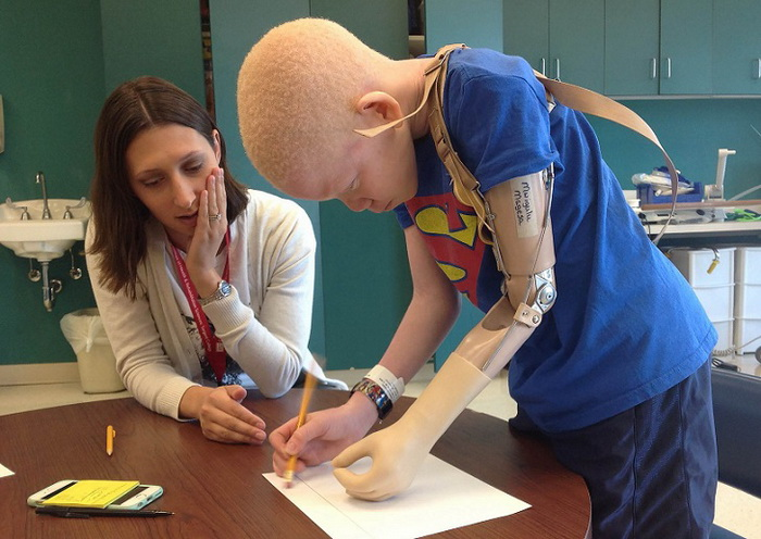 Gyermekek albínó élet, ami hasonlít egy igazi pokol - Infománia