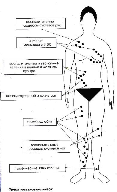 Постановка пиявок при варикозе