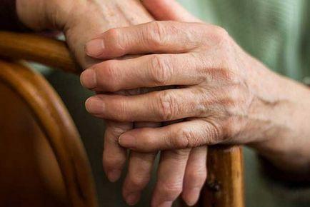homeopátia artritisz kezelése