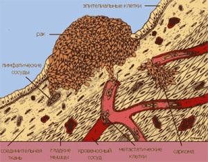 rák szarkóma diagnózis