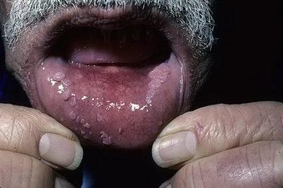 hogyan kell kezelni a szemölcsöket a szájban