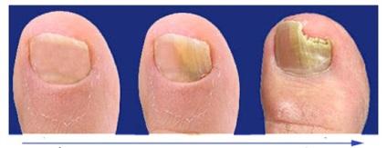 зимней о чем говорят ногти на ногах человека многих