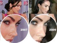 Megan fox előtt és után plasztikai