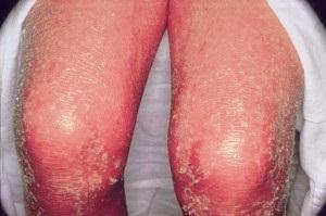 polyphepanum pikkelysömör kezelése