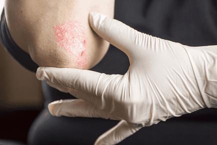 pikkelysömör kezelése a kezdeti szakaszban mik a vörös foltok a testen és viszketés