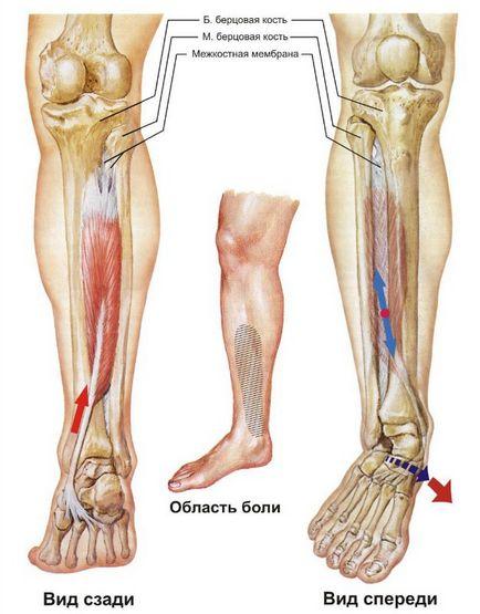 Боль в большой берцовой кости на ноге