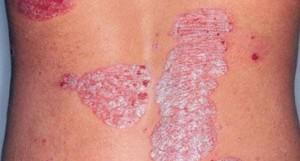 psoriasis okai