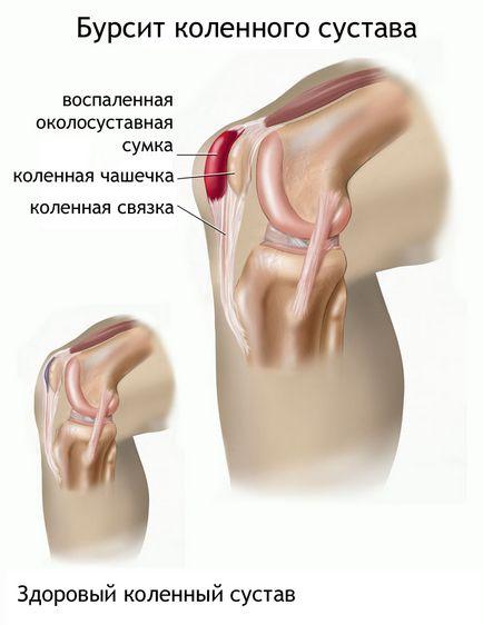 gennyes bursitis a könyökízület kezelésében