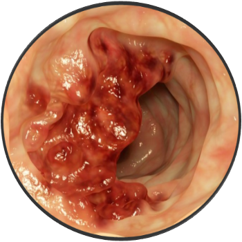 фото саркома желудка