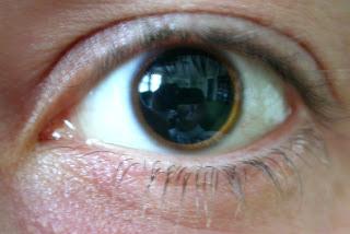 Pupile dilatate - Presiune September