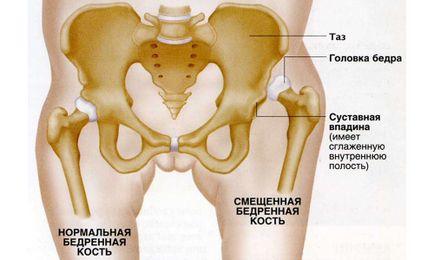 a nagy lábujj ízületi gyulladásának kezelése