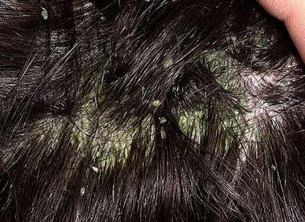 seborrhoeás dermatitis fejbőr
