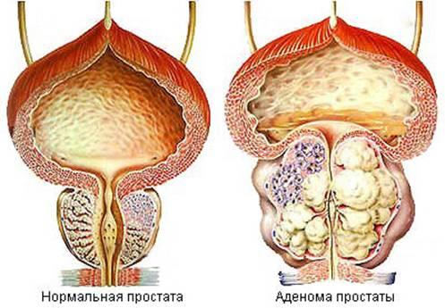 prostata dimensiuni