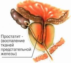 hogyan csökkenthető a prosztata adenoma)