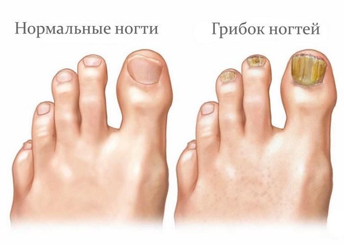 Суперчистотел от грибка ногтей