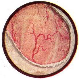 Mi a korai prosztatitis Prosztata tornaterem