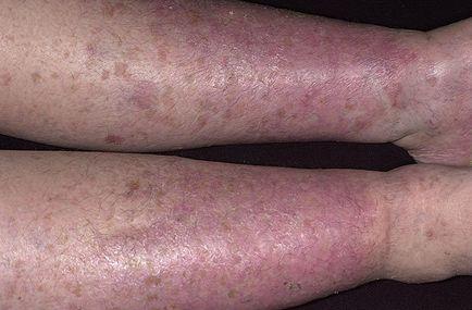 tratamentul eczemelor varicoase)