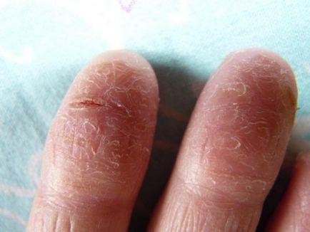 síró repedés az ujjak között)