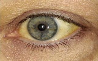 este a látás romlik myopia mém