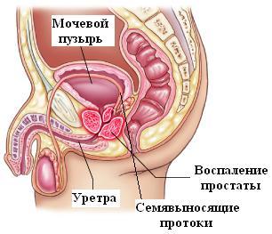 Ahol gyógyítani lehet a prosztatagyulladást