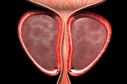Szklerózis fibrózis prosztata