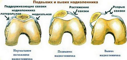Osteocondroza cervicala ?i tratamentul acesteia