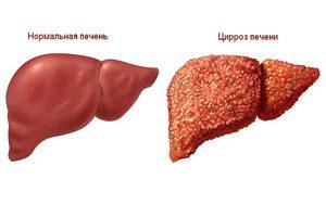 Portális hipertónia