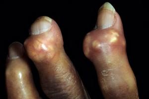 cum se tratează artroza de gradul 3 dureri articulare micoplasmoză