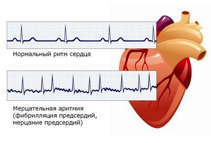 Aritmia műtétre, Hogyan kezelhető a szívritmuszavar?