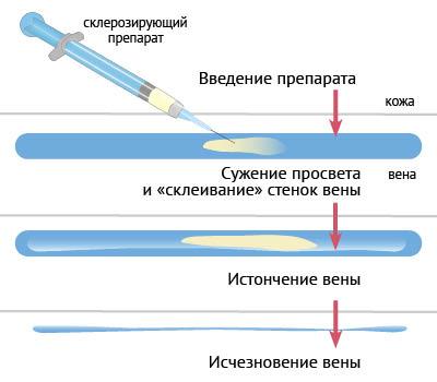 consecințele varicozei sarcinii fotografie de tratare a simptomelor varicoase interne