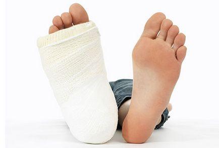 A hüvelykujj-kapszula károsodása. Kézremegés (tremor) tünetei és kezelése