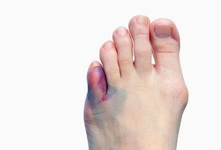 Zárt kéz ujjperc sérülések ⋆ Gyógyhírek