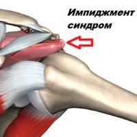 a jobb vállízület kezelésének ütközési szindróma vándorló fájdalom az ízületekben és a karban