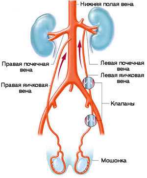 Echo italok XP prosztatitis Fure fű prosztatitis