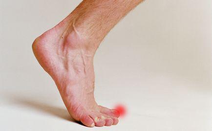 deget mare picior amortit