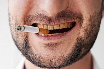 fehérítse a fogakat a dohányzástól népi gyógymódokkal)