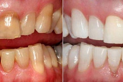 fehérítse a fogakat a dohányzástól népi gyógymódokkal