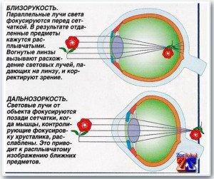 miopie în același timp hipermetropie