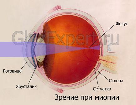 prevenirea miopiei la copii vedere hipovitaminoză