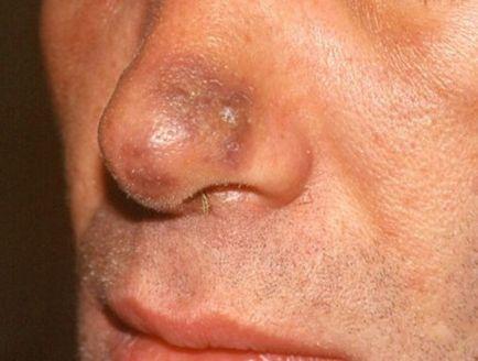 Сарком на Капоши снимки на ранен стадий, симптоми, причини, лечение и прогноза