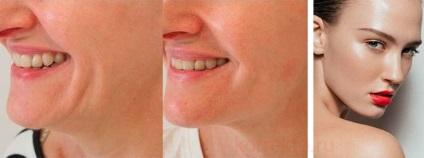 Păstrați pielea de pe piele cu restylane