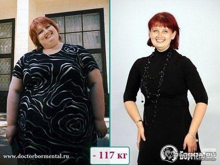 Фото Похудевших На Диете Борменталя. Правила похудения по доктору Борменталю
