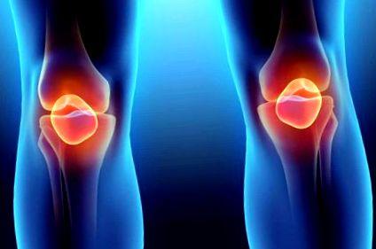 Bechterew-kór tünetei és kezelése