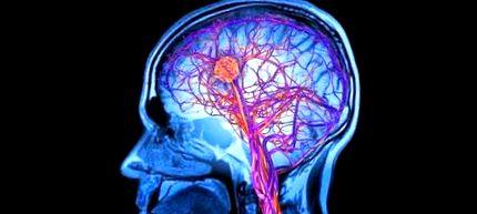 pierde greutate creier