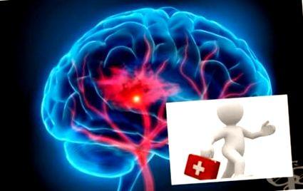 Cauzele si simptomele accidentului vascular cerebral – BIODEV MEDICAL CENTER IAŞI