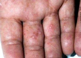 oregano pikkelysömör kezelése